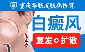 重庆治疗白癜风多少钱